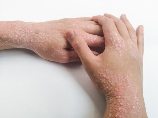 Dermocorticoïdes et conseils associés